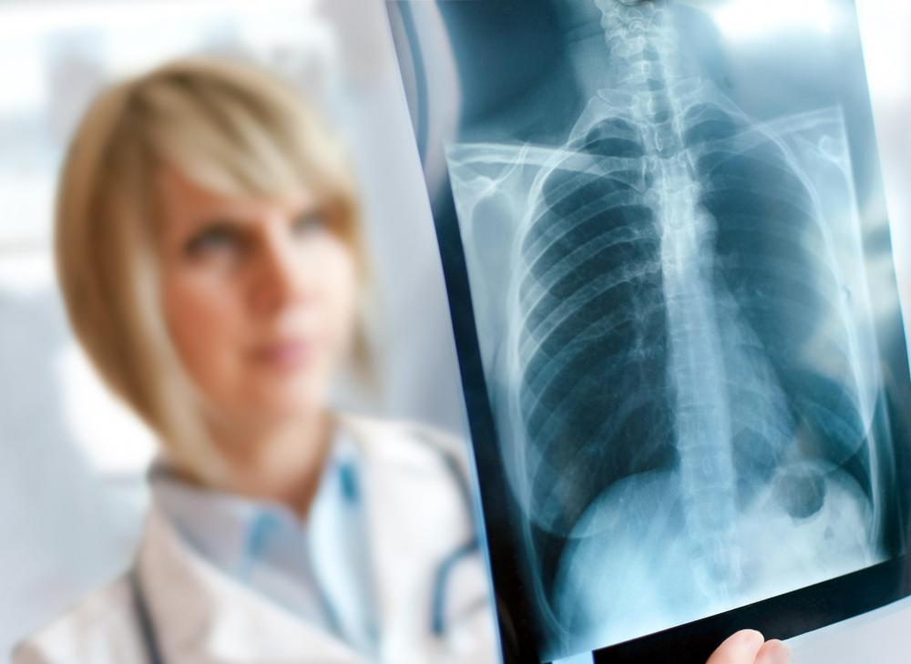 A chest X-ray can be used to confirm a lung cancer diagnosis.