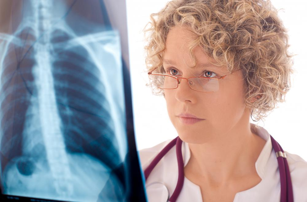 A radiologist can identify the sail sign in a lung X-ray.