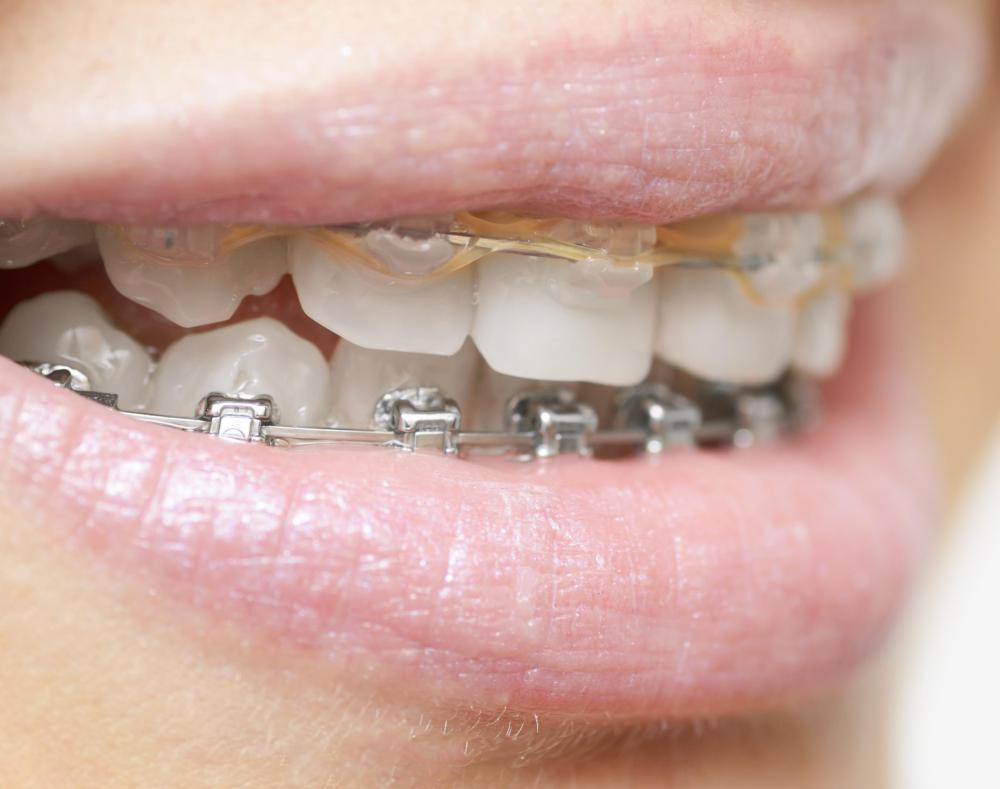 An overbite can be adjusted by an orthodontist.