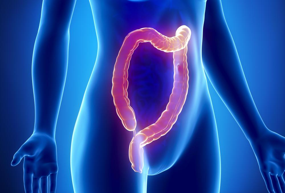 Crohn's disease may affect the colon.