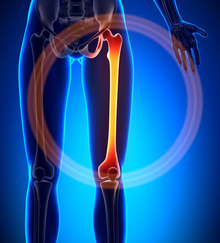 Femoral condyles are the pair of round bony protrusions emanating from either side of the bottom of the femur bone.