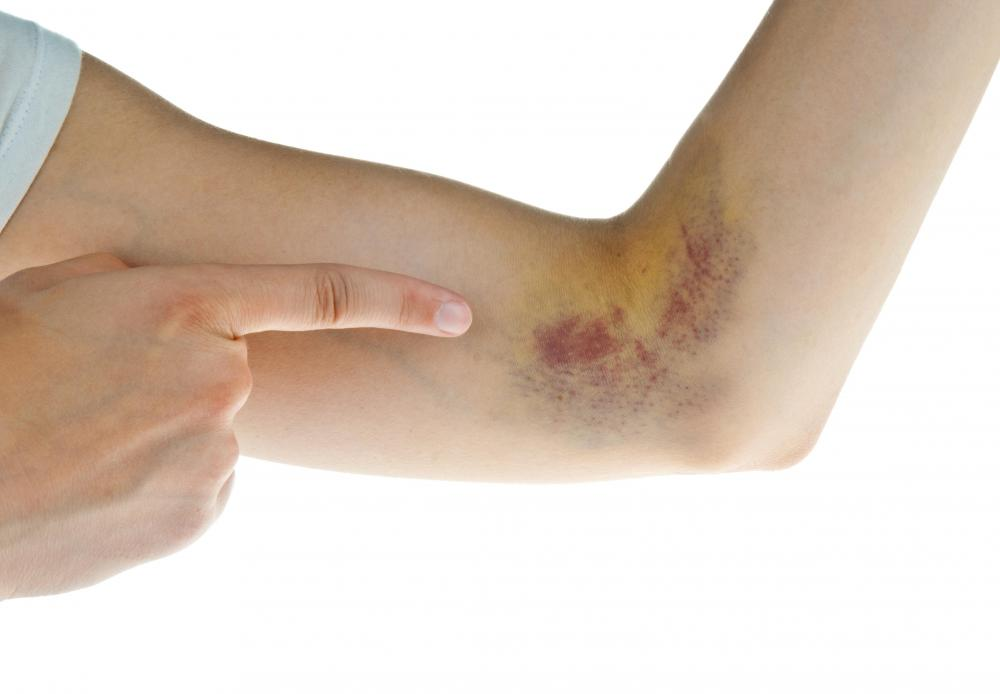 Bruising is common when taking Coumadin.