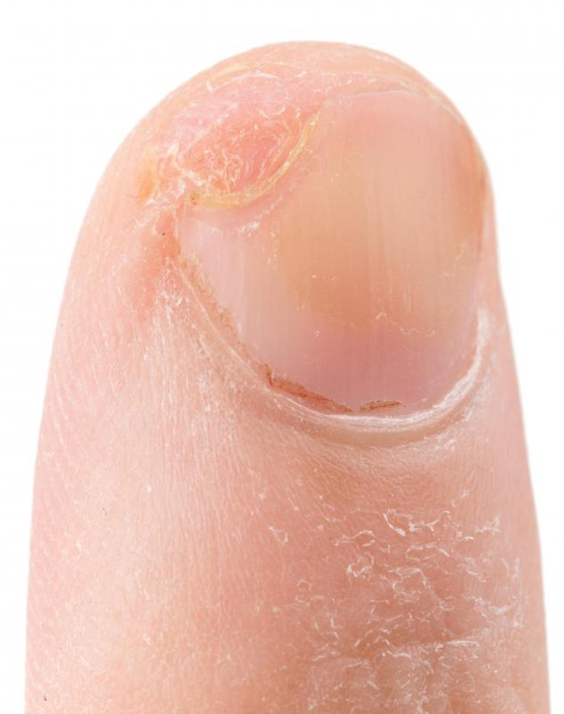 What Are the Common Causes of Fingernail Pus? (with pictures)