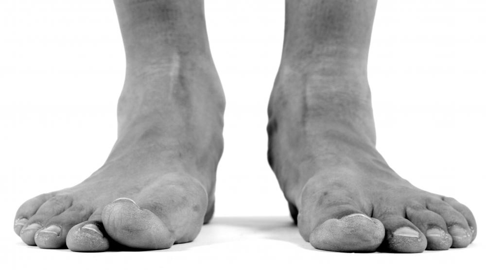 Flat feet surgery might be needed if other treatments fail to correct the problem.