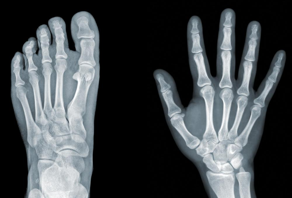 x ray technicians often called radiologic technicians use equipment such as x ray machines to take images of bones or other internal parts of a patients - X Ray Technologist Job Description