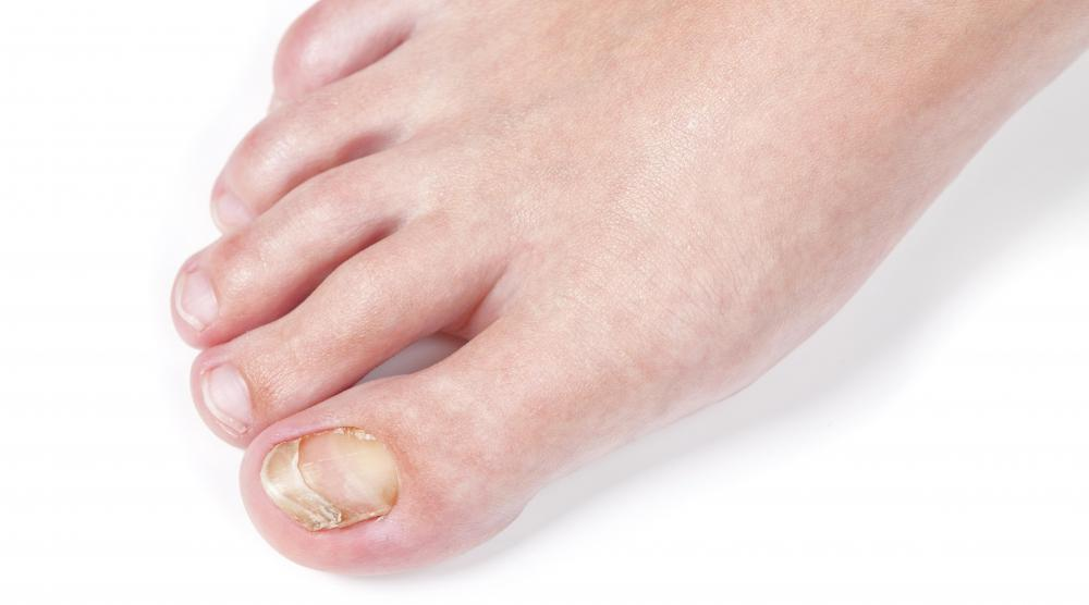 What Are the Different Causes of Orange Toenails?