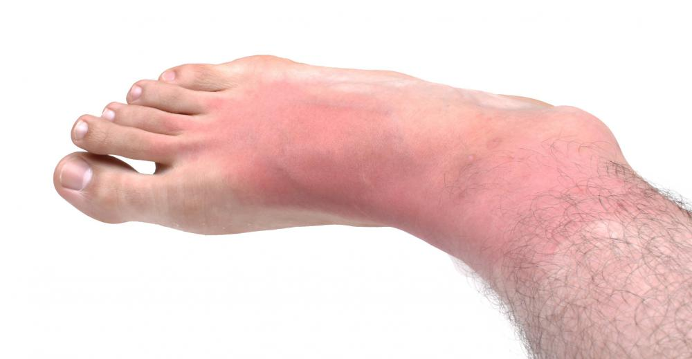 Redness Is A Common Symptom That Blood Clot Present
