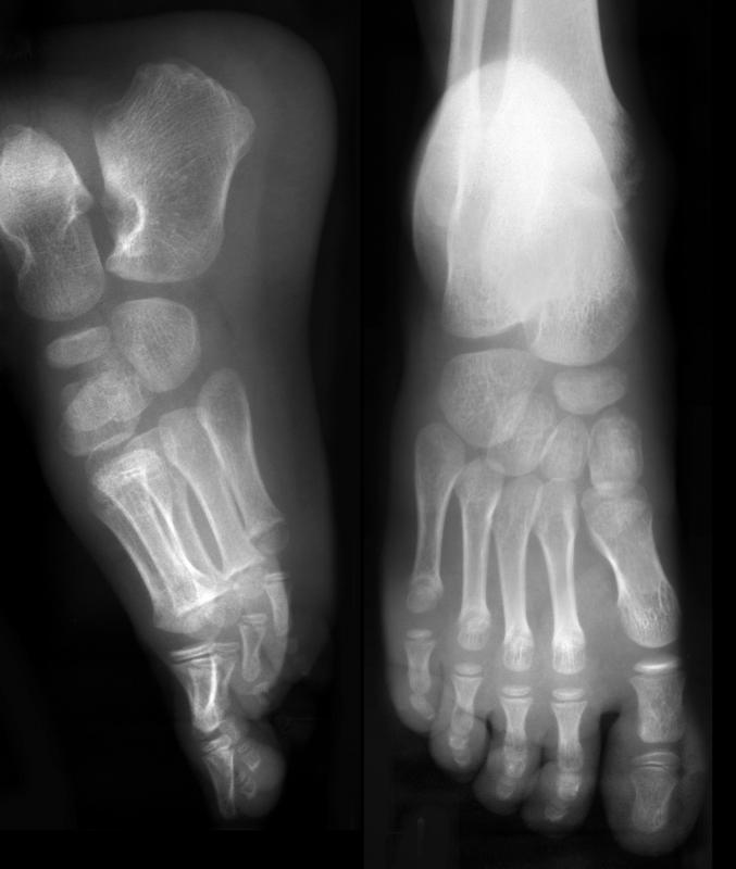It is difficult to see a sesamoid break using an x-ray.