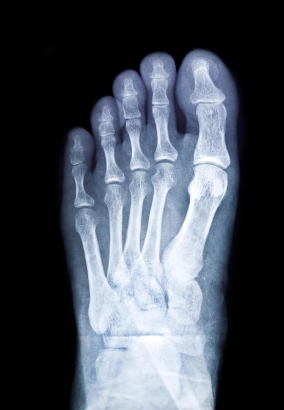 If a foot injury doesn't improve in a short period of time, an x-ray should be taken to see if the foot is broken or not.