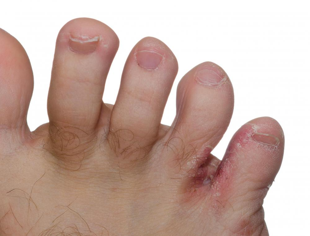 Athlete's foot can be dealt with using sprays or creams.