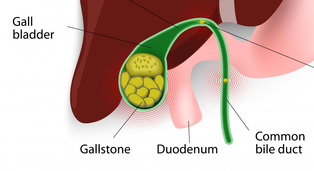 Gallstones obstructing the bile duct can cause jaundice.