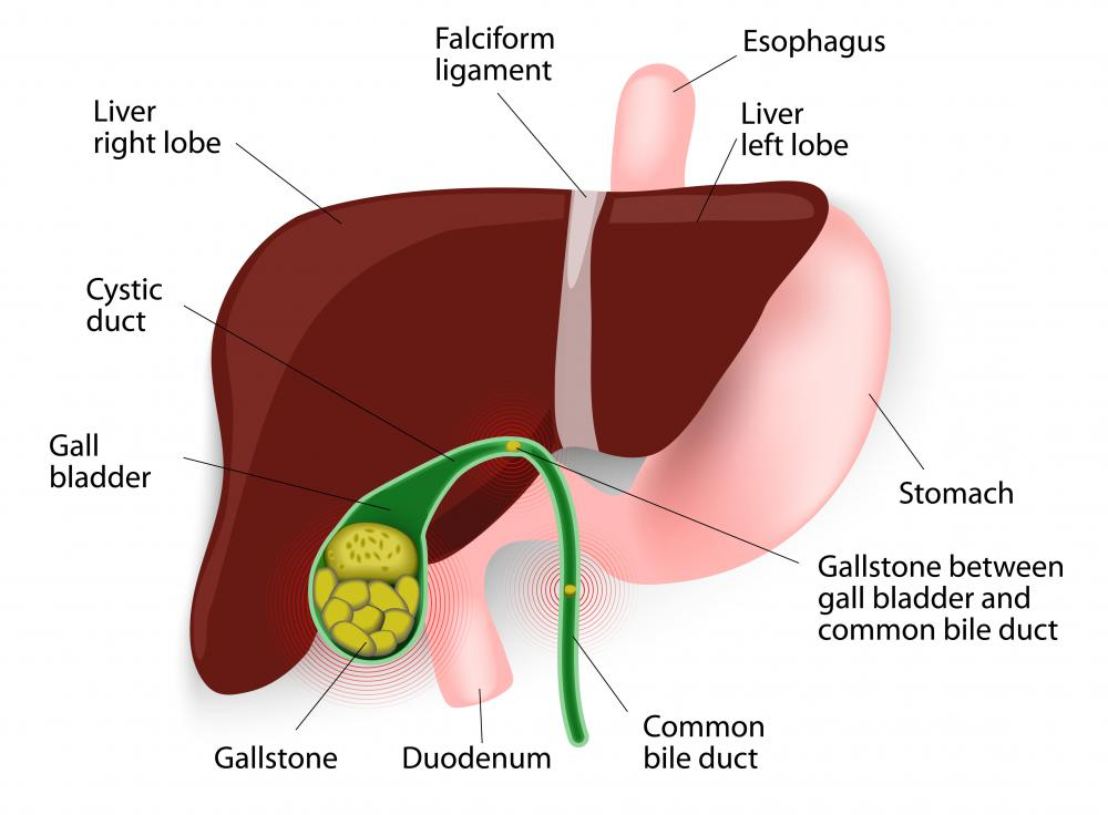 what is gallbladder dyskinesia? (with pictures), Cephalic Vein