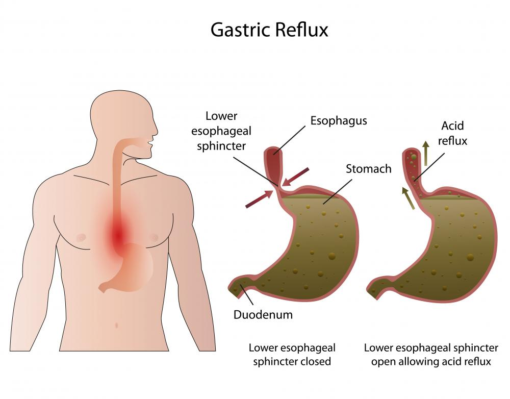With acid reflux disease, the lower esophageal sphincter fails to prevent back flow of stomach acids from entering the esophagus.