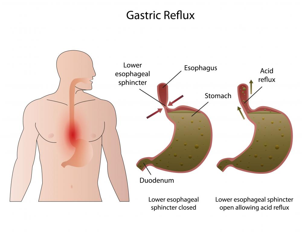 When the upper and lower esophageal sphincter are not working properly, GERD may occur.