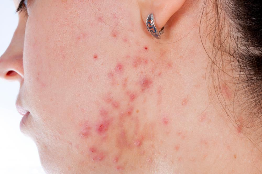 A zit refers to pimples and blackheads, which are symptoms of acne.