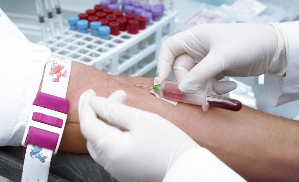 Nurses must complete a phlebotomy certificate program to collect blood samples.