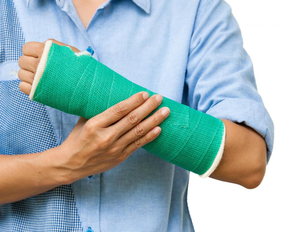 A broken wrist may require a cast.