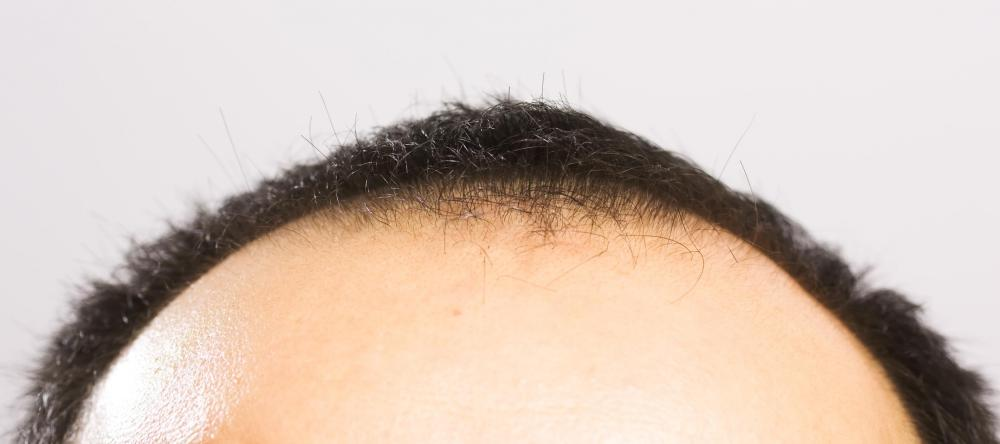 Estrogen may help slow male baldness.