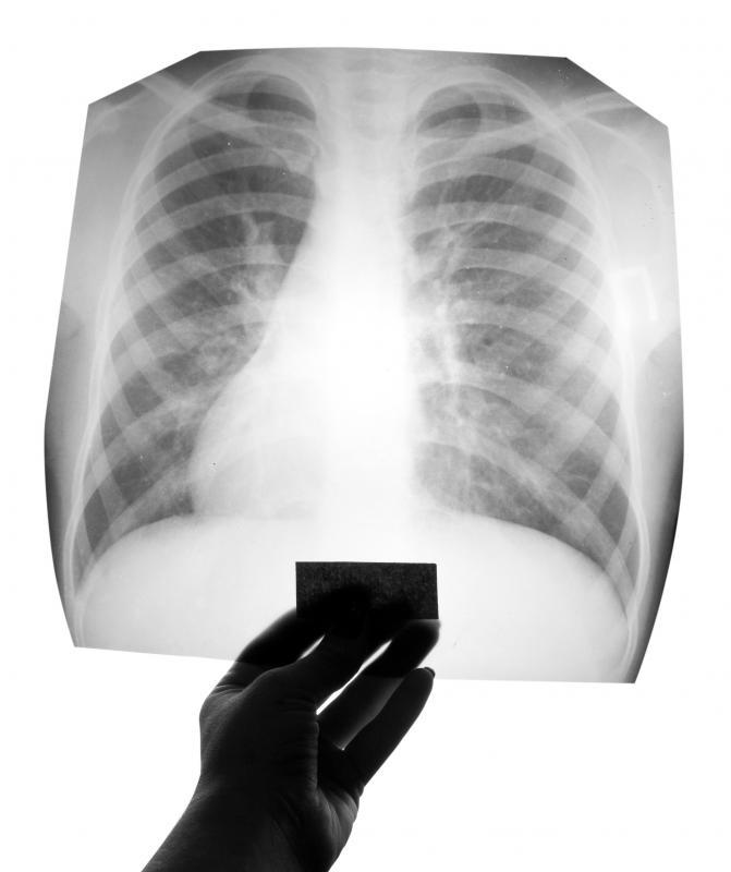 Doctors may order an x-ray to visualize an acute lung injury.