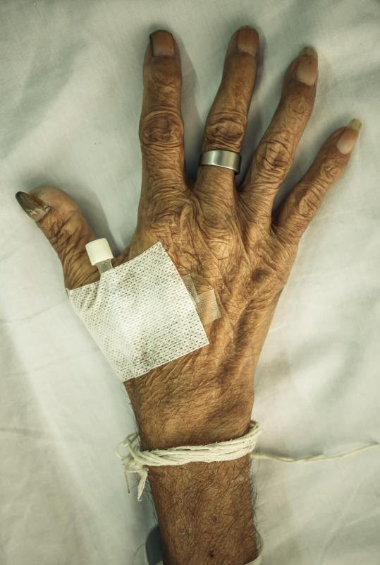 Hand atrophy causes muscles of the hand to deteriorate and wither away.