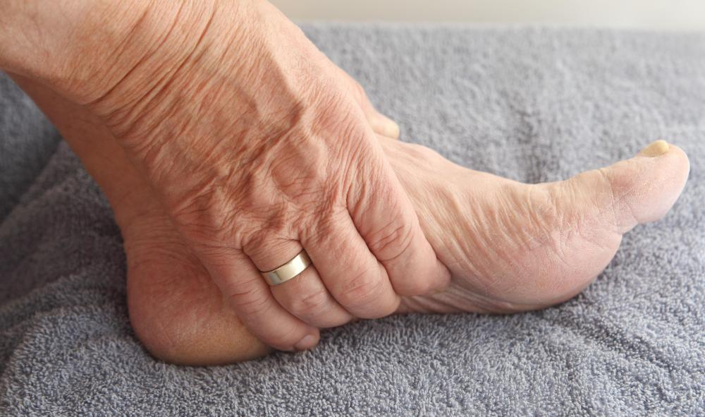 Patients suffering from idiopathic peripheral neuropathy may notice symptoms in the feet.
