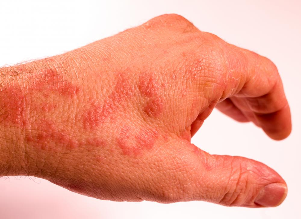 Skin inflammation, also known as eczema or dermatitis, is a medical condition in which the skin becomes red and irritated.