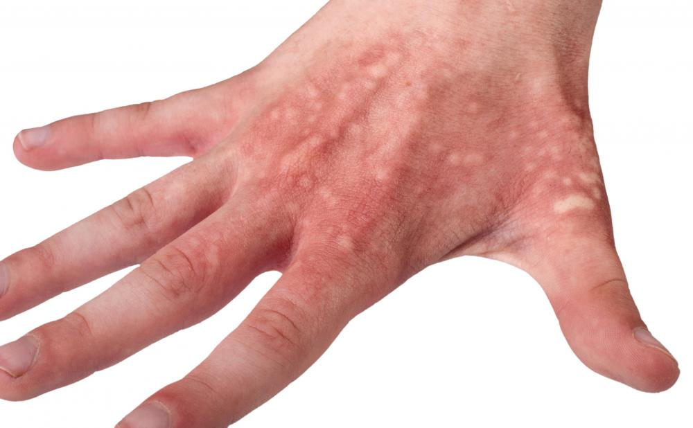 People with porphyria cutanea tarda may experience skin blisters when exposed to too much sun.