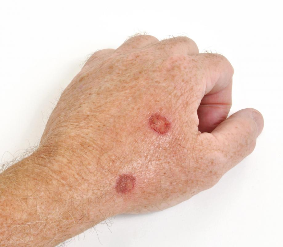 What Is The Connection Between Itching And Skin Cancer