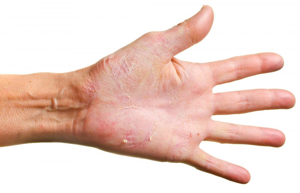 Symptoms of a spleen tumor may include itchy hands.
