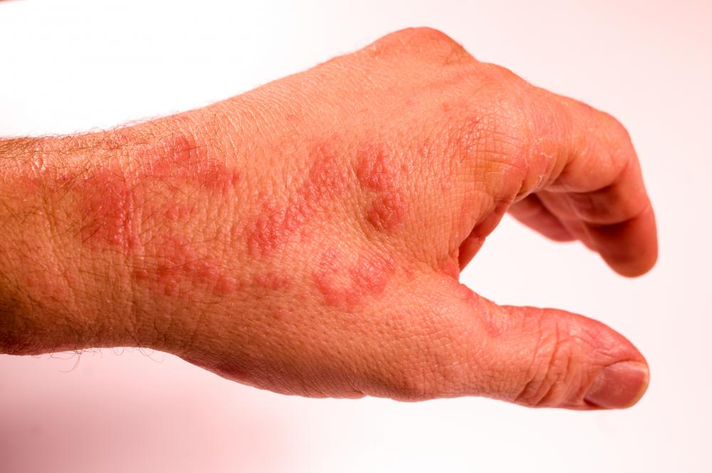 skin rashes on hand