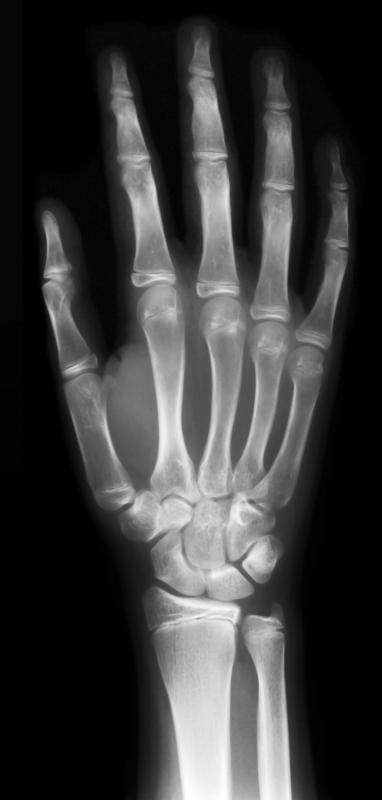 An X-ray of a hand.