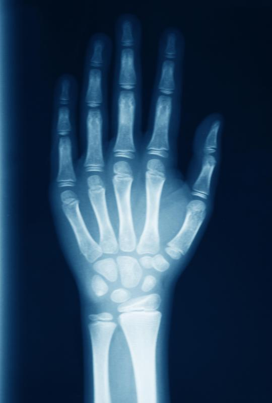 An x-ray may be used to examine the bones if a broken finger.