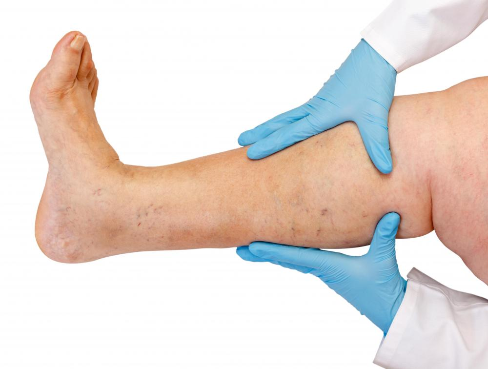 Edema can cause leg swelling.