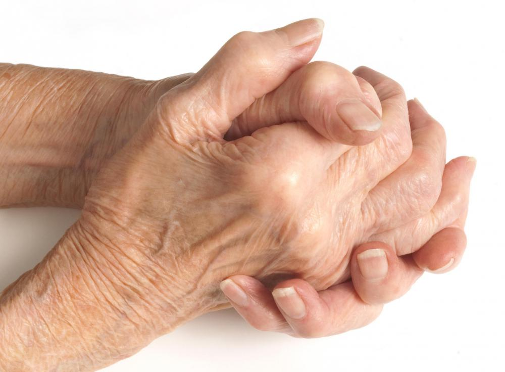 Hands of woman with arthritis.