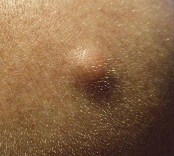 Sebaceous Cyst in Groin Area http://www.wisegeek.com/what-is-a-cyst.htm