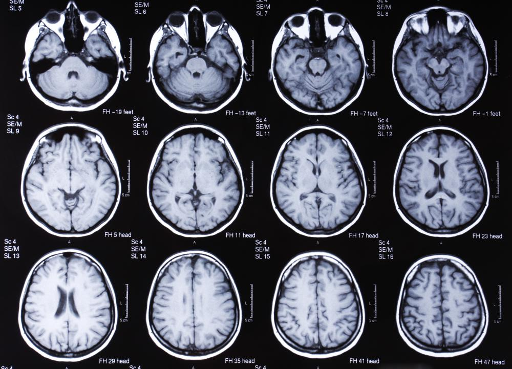 An MRI scan of the brain may be used to help diagnose a traumatic brain injury.