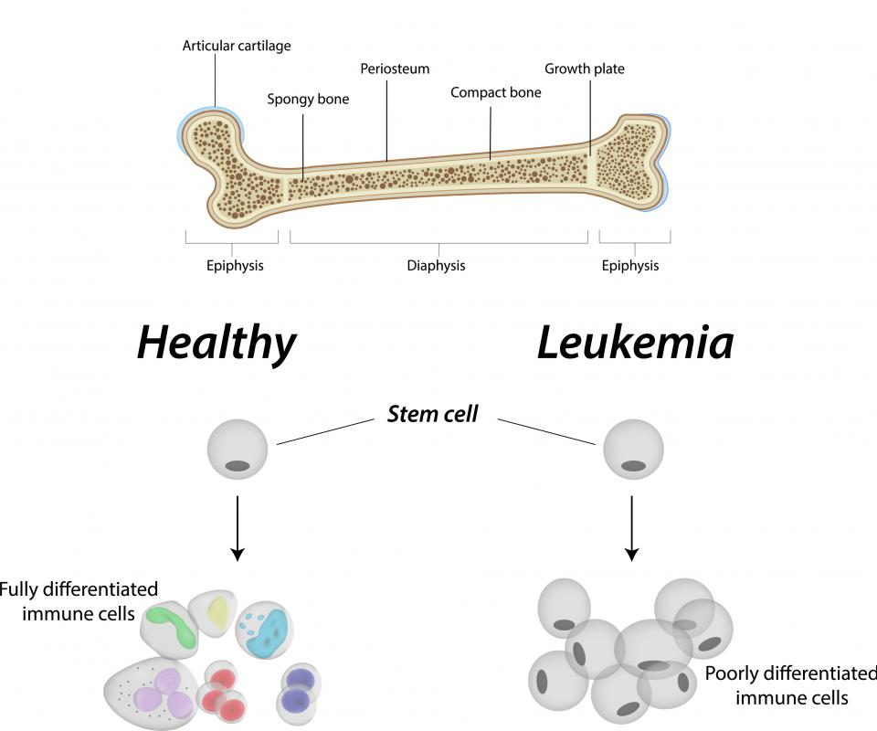Leukemia results when too many white blood cells stay as blast cells in the bone marrow.