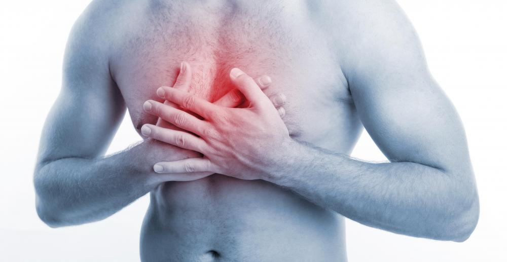 The most obvious symptom of a heart attack is chest pain.