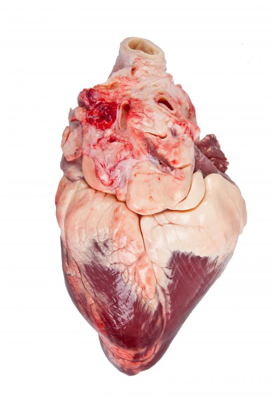 Viruses that reach an otherwise normal heart can cause it to swell.