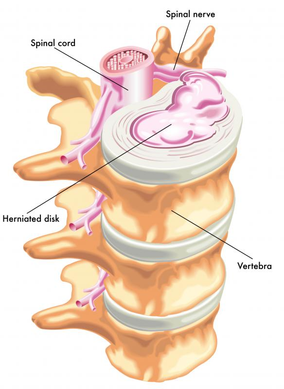 Slipped or herniated discs are two conditions that involve the vertebral column.
