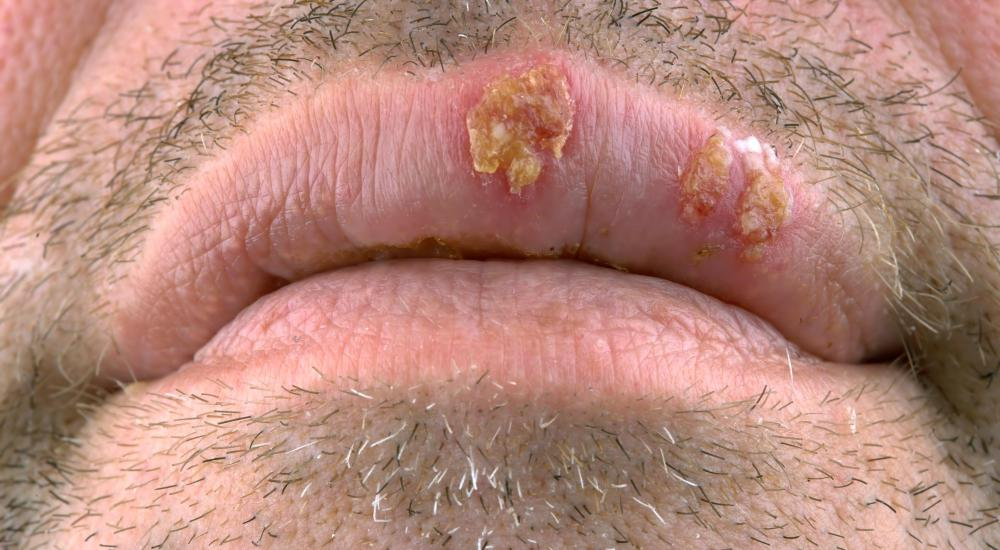 A sore around the lips is a common STD symptom for men.