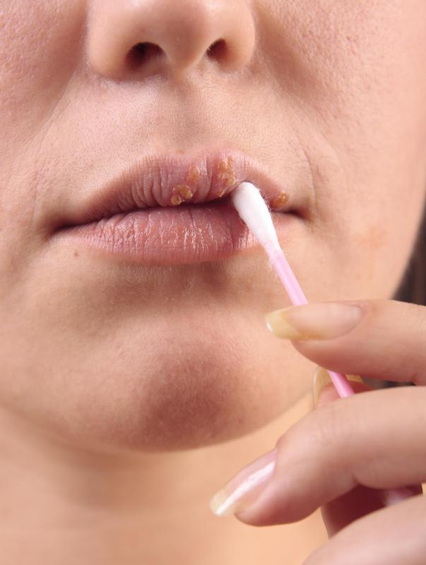 Some topical swabs are sold prepackaged with medication to treat cold sores and other conditions.