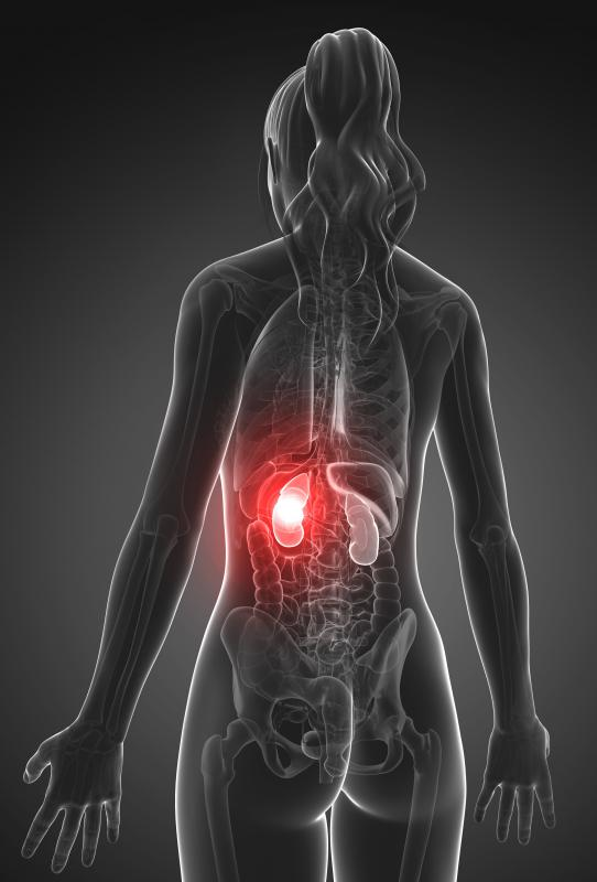 Kidney failure may be a symptom of myeloma.