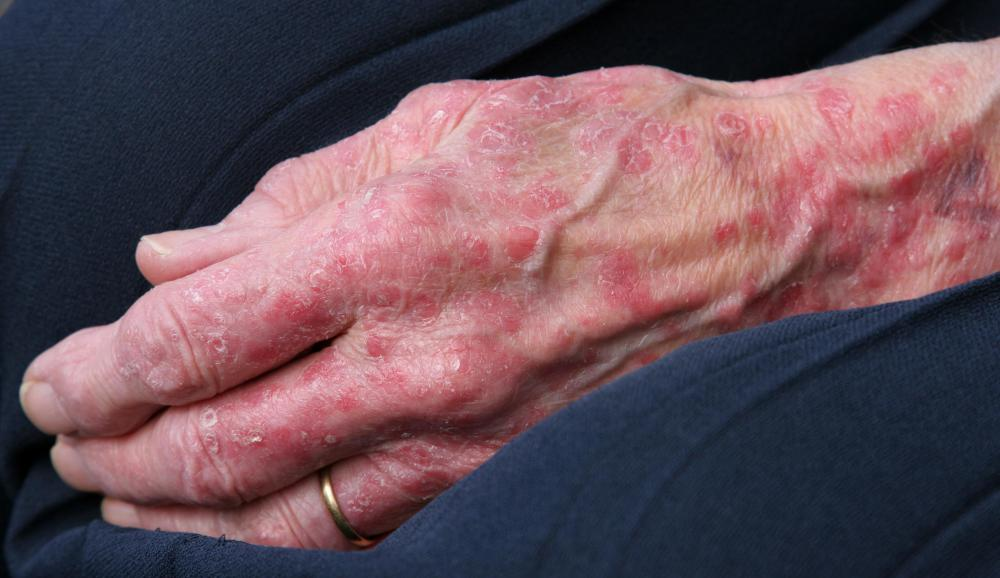 Signs of an allergic reaction to peanut butter may include hives.