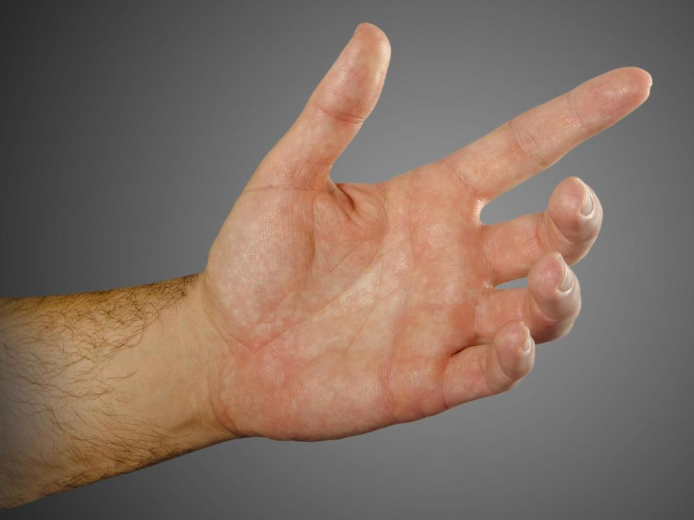 People with Raynaud's phenomenon may experience tingling fingers.
