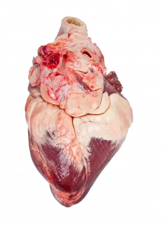 A heart transplant involves replacing a damaged or diseased heart with that of a healthy, donor one.
