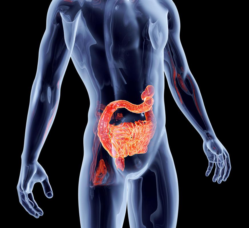 Pathological stress caused by certain bacteria may lead to intestinal metaplasia.