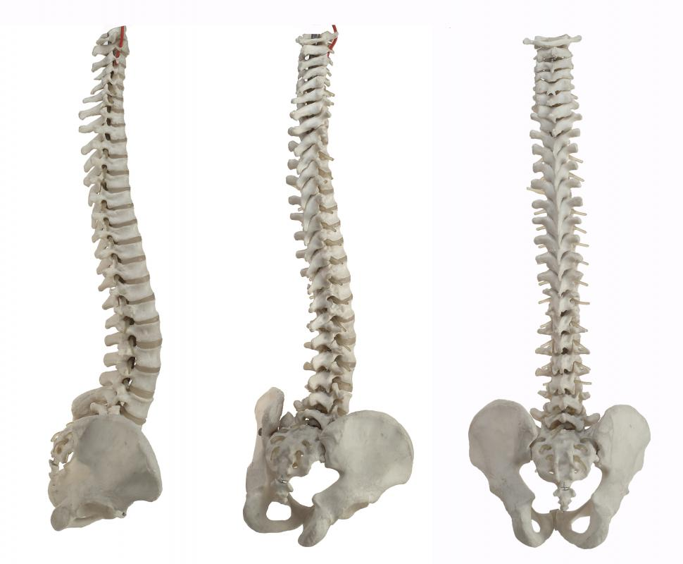A spinal fusion is a medical procedure in which two or more vertebrae become fused together.