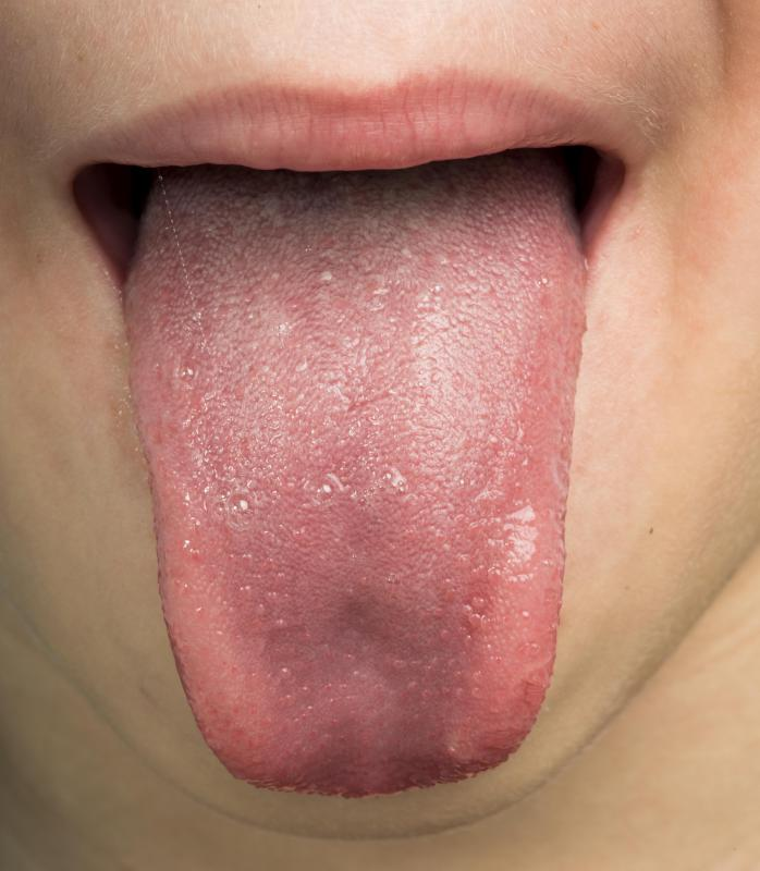 Signs of an allergic reaction may include a swollen tongue.