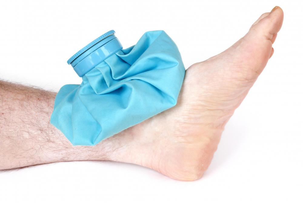 Often swelling from minor injuries such as a strain can be prevented by icing the affected area.